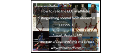 How to read the ECG in athletes: distinguishing normal from abnormal