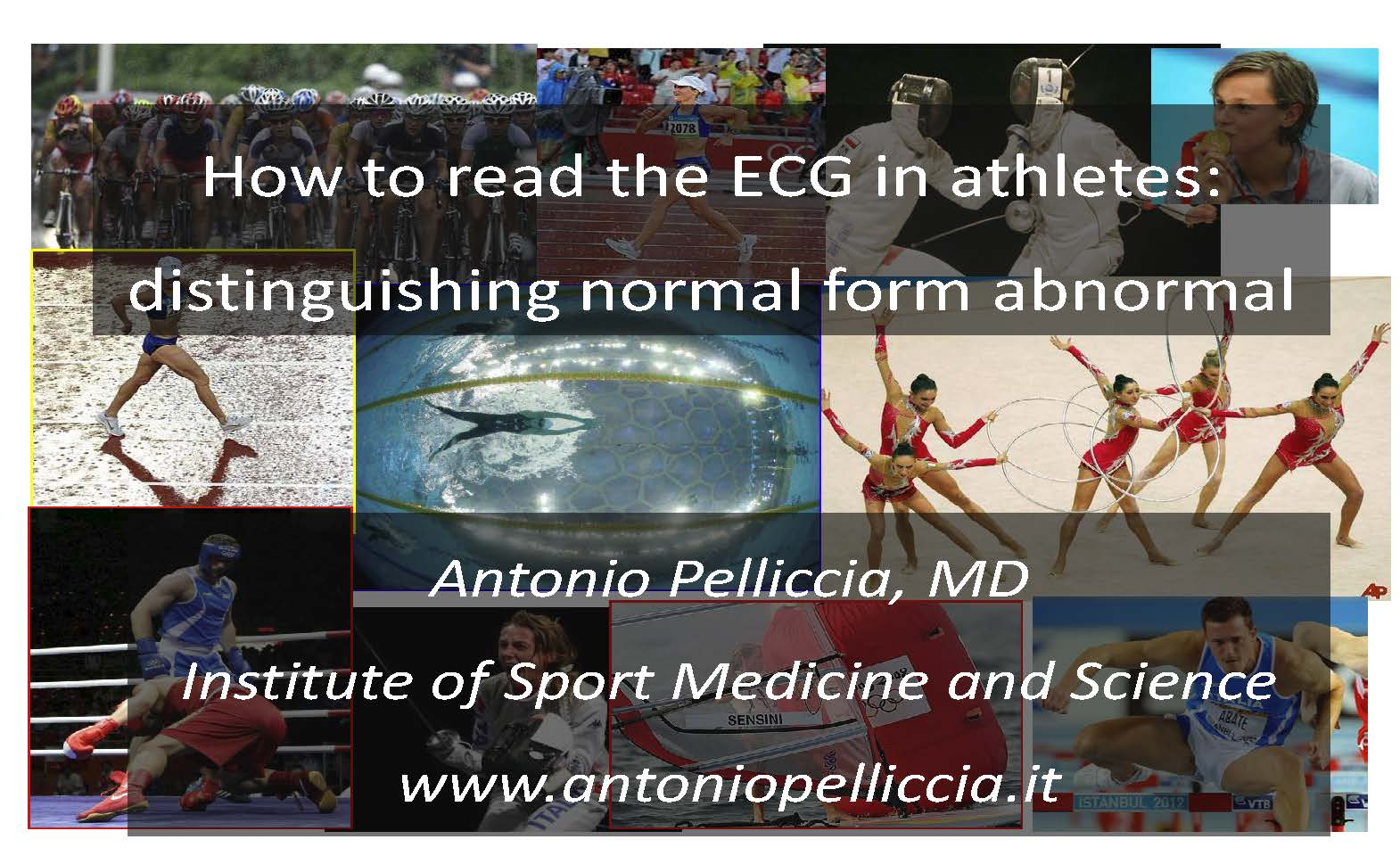How to read the ECG in athletes